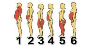 KNOW-YOUR-OBESITY-TYPE-TO-LOSE-WEIGHT-FAST